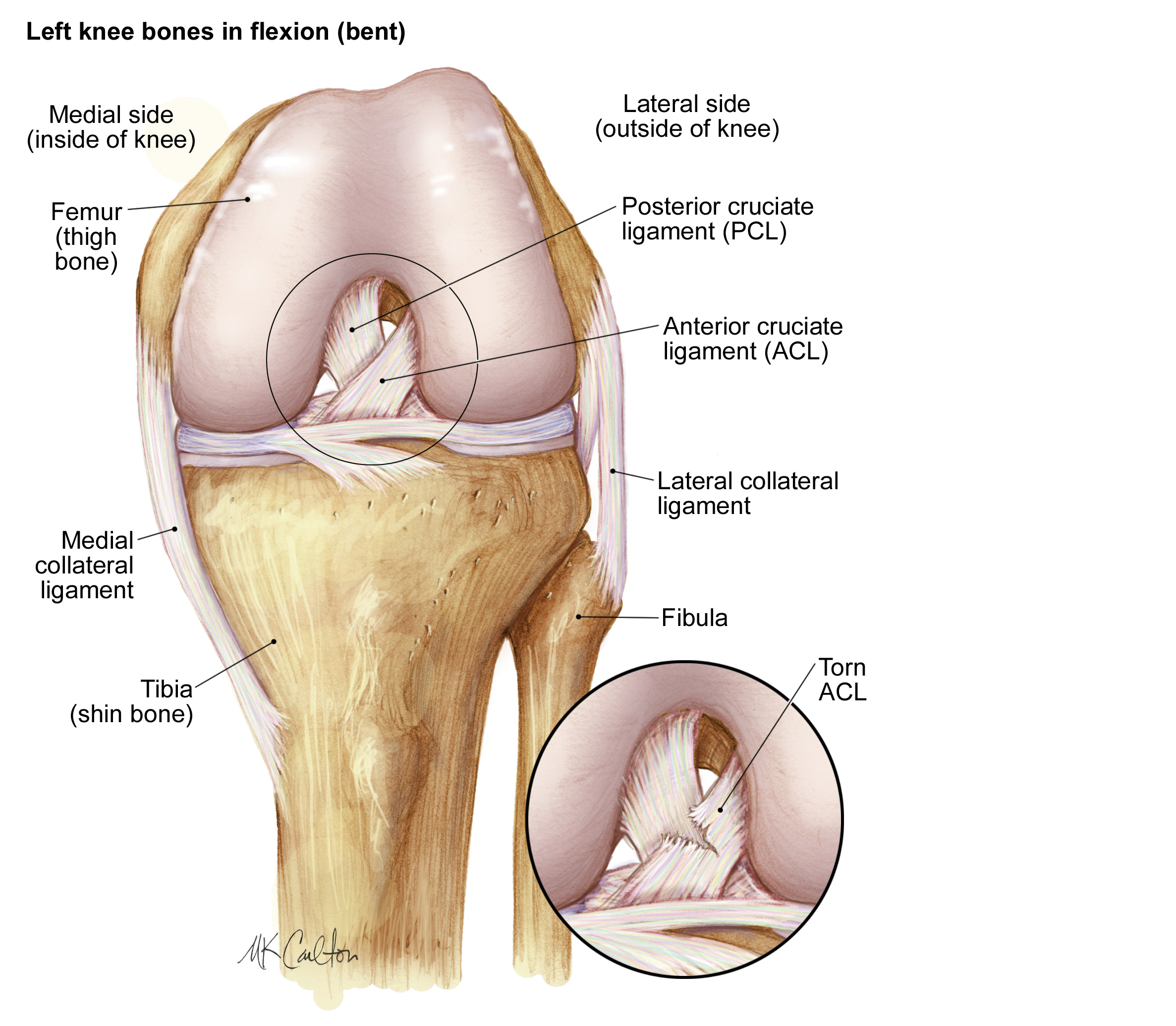 ACL Injury Prevention Graphic